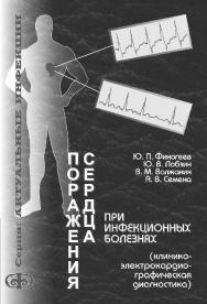 Поражения сердца при инфекционных болезнях (клинико-электрокардиографическая диагностика): Руководство для врачей. ISBN 5-93929-070-1
