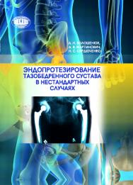 Эндопротезирование тазобедренного сустава в нестандартных случаях ISBN 978-985-08-2450-9